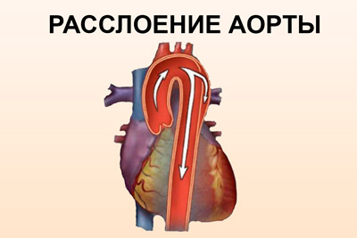 Гасслоение грудного отдела аорты