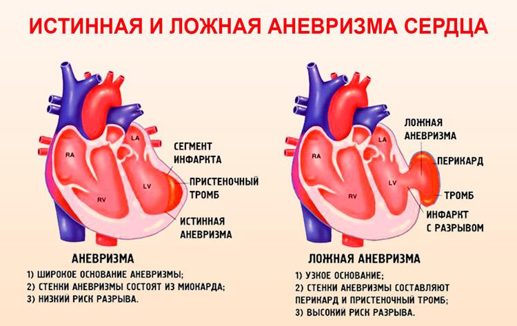 Истинная и ложная аневризма сердца