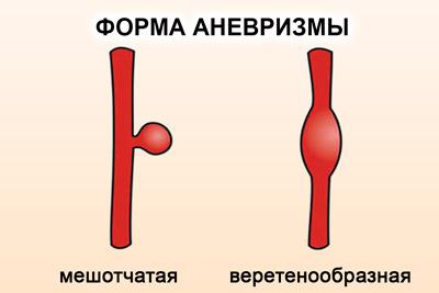 Вид аневризмы
