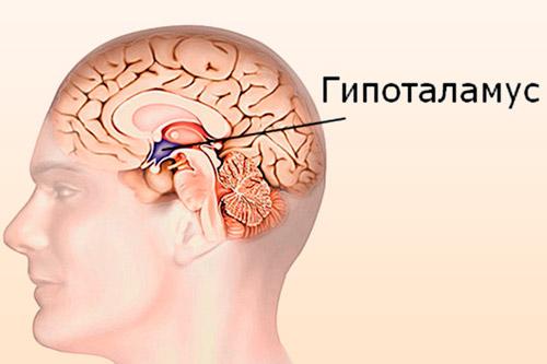 Опухоль гипоталамуса