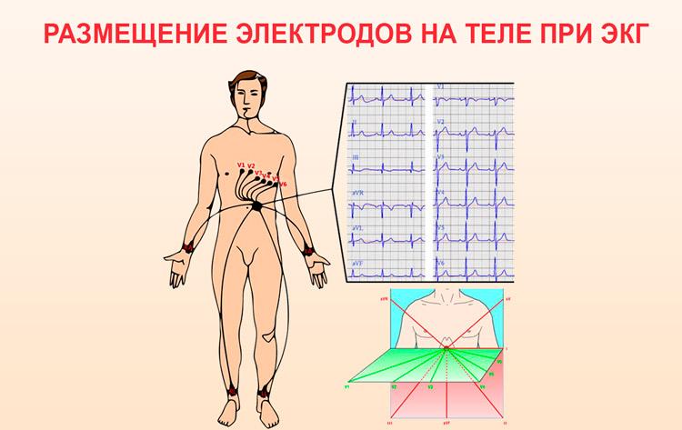 Расположение электродов на теле при ЭКГ