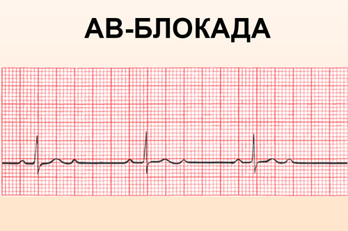 АВ-блокада на ЭКГ