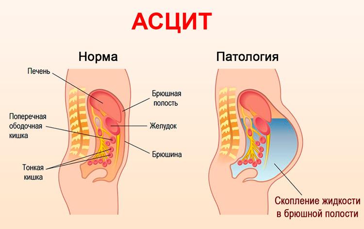 Асцит при сердечной недостаточности сколько живут лечение
