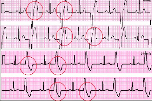 Желудочковая бигеминия сердца: что это такое, лечение