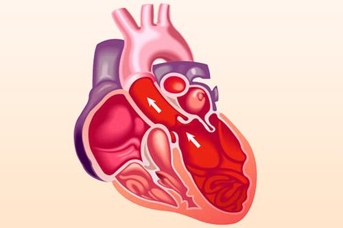 Сердце с кардиомиопатией