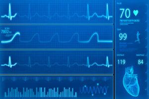 Блокада сердца: классификация и симптомы