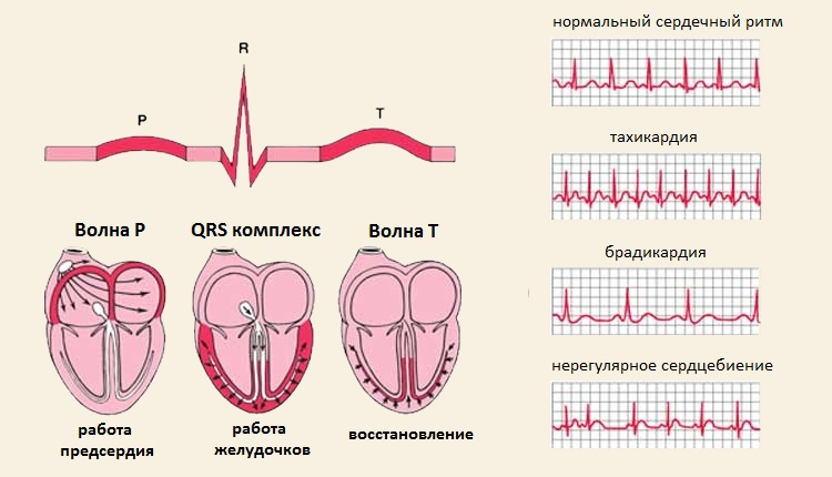 Аритмия синусового типа
