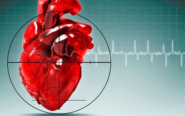 Диффузный кардиосклероз: определение, причины и лечение