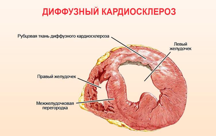 Рубцовая ткань миокарда