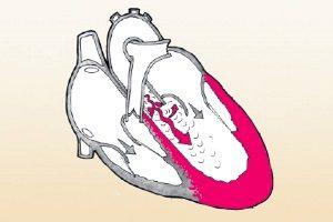 Дилатация левого желудочка