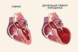 Патология левого желудочка сердца
