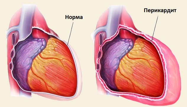 Сердце при перикардите