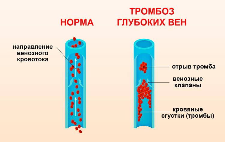 Отрыт тромба