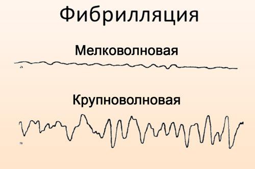 Подвиды фибрилляции предсердия