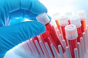 Анализ крови для биохимии
