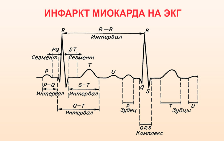 Инфаркт миокарда на кардиограмме