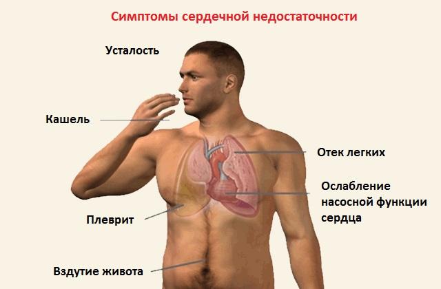 Сердечная недостаточность - симптомы
