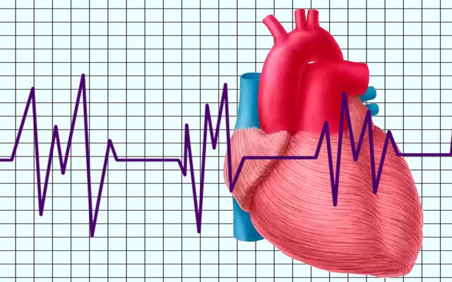 Типы изменений миокарда сердца