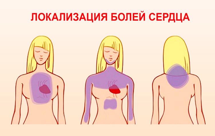 Локализация болей сердца