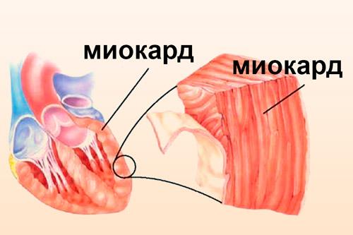Мышечная стенка сердца