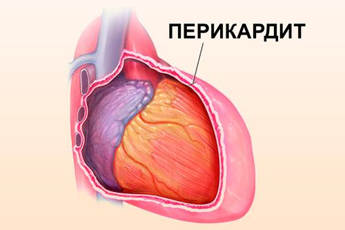 Колит сердце при вдохе и не проходит thumbnail