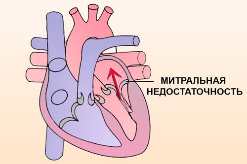Протекание митрального клапана