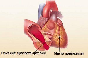Сужения артерии