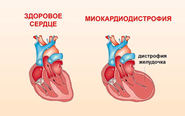 miokardiodistrofiya simptomy i lechenie 5 - Qu'est-ce que la dystrophie myocardique chez l'adulte