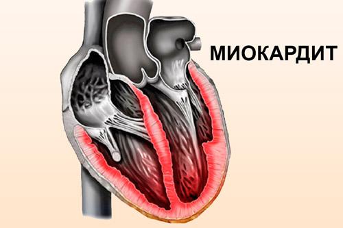 Воспаление миокарда