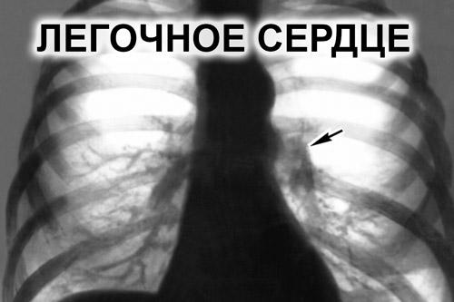 Легочное сердце на ЭКГ