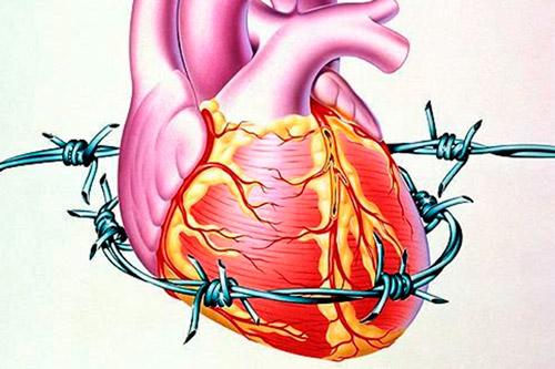Опухоли сердца: виды и лечение