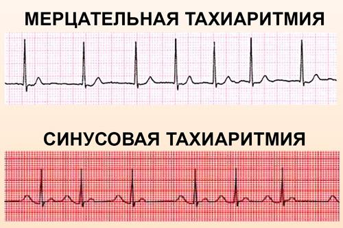 Тахикардия на ЭКГ