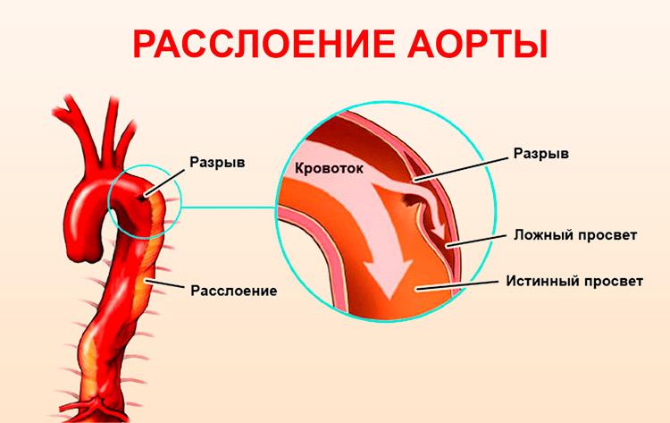 Расслоение исходящего отдела аорты