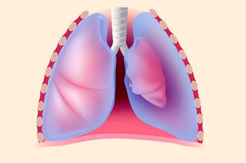 Скопление воздуха в плевральной полости