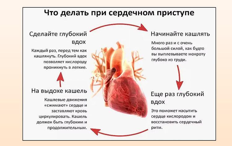 Действия при сердечном приступе