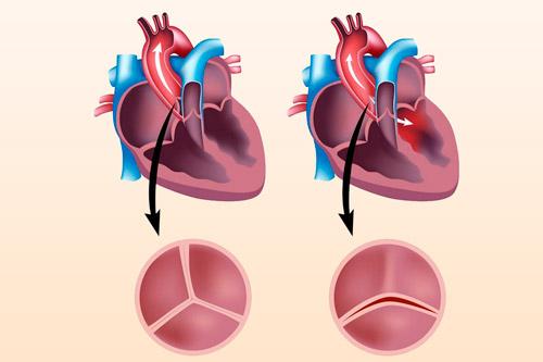 Узкий вход в главную артерию