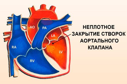Неплотное закрытие створок аортального клапана