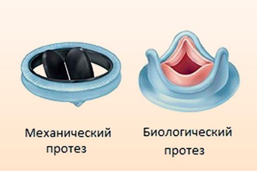 Искусственные клапаны