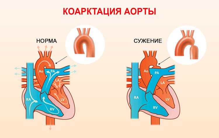 порок сердца нет клапана