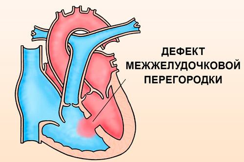 Отсутствие перегородки между желудочками