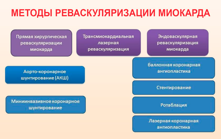 Реваскуляризация миокарда