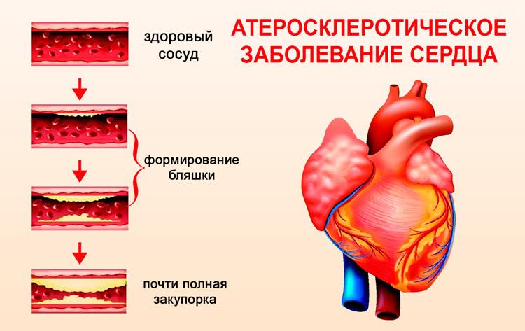 Атеросклеротическое заболевание сердца