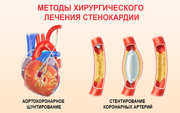 Шунтирование и стентирование сосудов