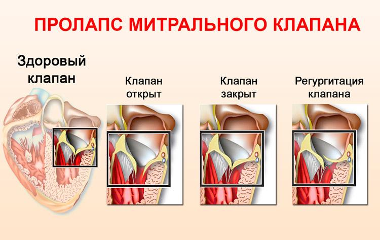 Регургитация митрального клапана