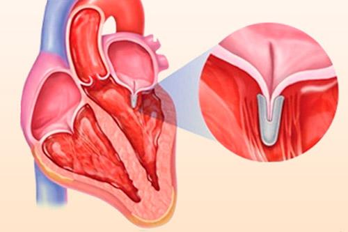 Операция на митральном клапане сердца