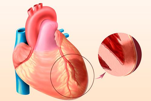 Сердце с инфарктом
