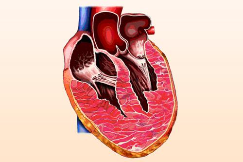 Расширение правого желудочка сердца в поперечнике: что это значит?
