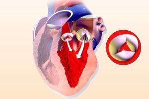 Первая степень регургитации аортального клапана