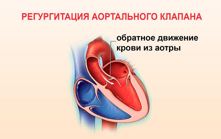 Обратное движение крови из аорты