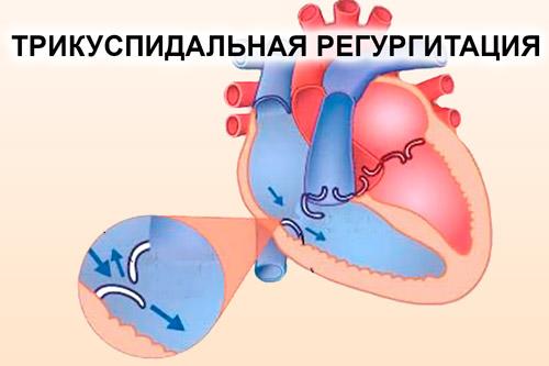 Регургитация трикуспидального клапана 1 и 2 степени